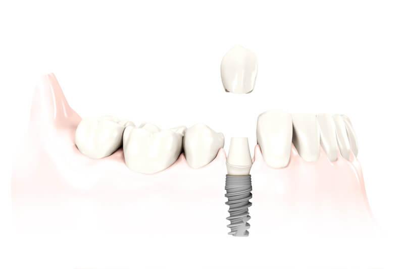 Отсутствие одного зуба