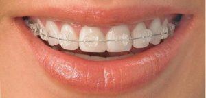 Plastic braces