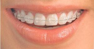 Sapphire braces