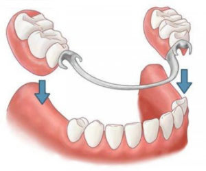 Removable and partially removable dentures