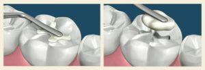 Реставрация зубов - Методы: Пломбирование