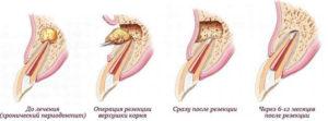 Апексэктомия зуба