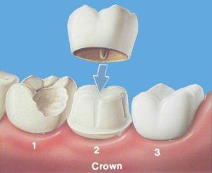Реставрация зубов - Установка коронок.