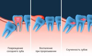Удаление зуба мудрости в Ереване, Армения