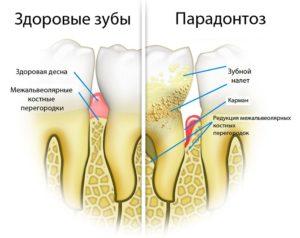Periodontics - causes and treatment of gum diseases
