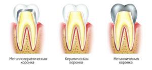 prosthetic dentistry