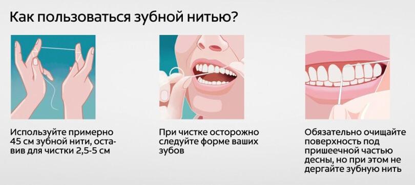 Гигиена и уход за зубами